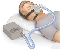 Positive Airway Pressure most commonly CPAP